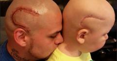 Баща татуира белега на сина си от мозъчна операция